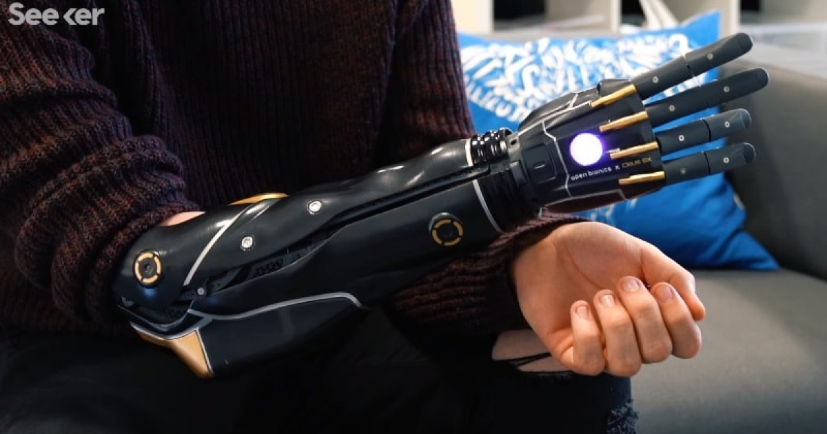 Scientists Create A New Bionic Arm That Can Grow With You.