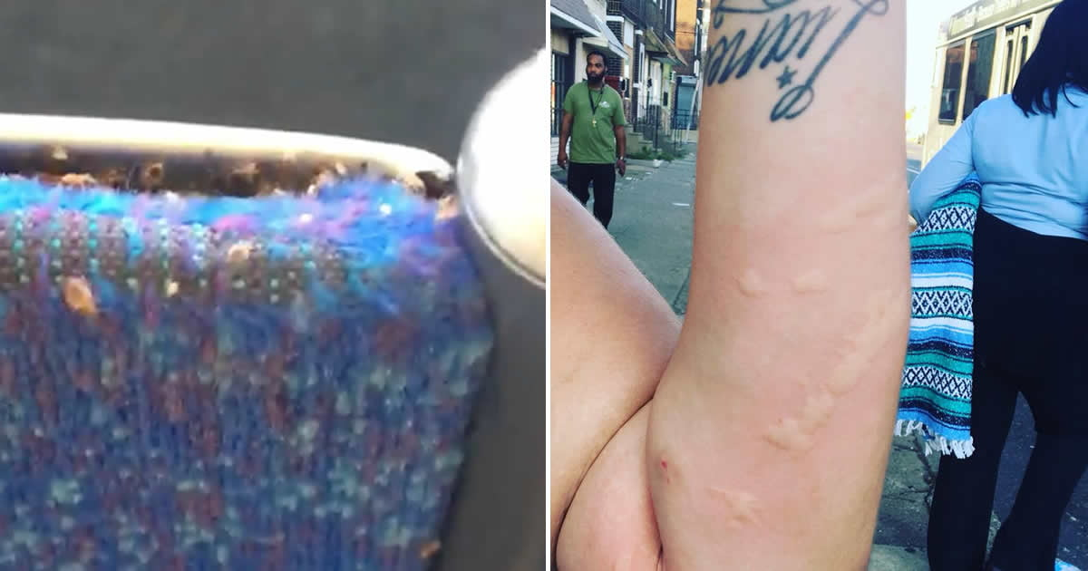 Philadelphia Woman Discovers Thousands Of Bedbugs Crawling On The Bus Seat.